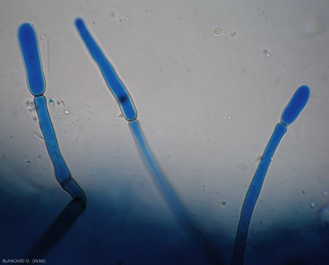 Des jeunes conidies  sont en cours de formation à l'extrémité de conidiophores dressés de Corynespora cassiicola. (corynesporiose)