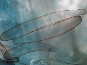 Aspect de conidies légèrement mélanisées. Corynespora cassiicola (corynesporiose)