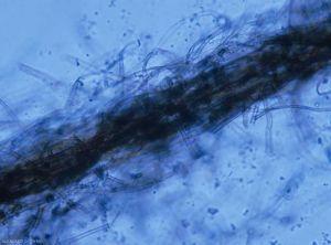 Rhizoctonia-crocorum5