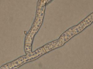 Rhizoctonia-mycelium