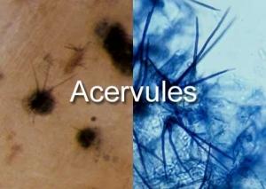 acervules