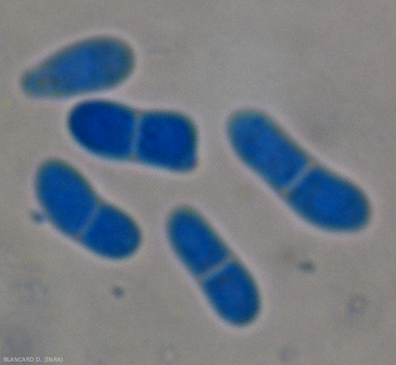 Détail de pycniospores  uni ou bicellulaires. <b><i>Didymella lycopersici</i></b> (chancre à <i>Didymella</i>, <i>Didymella</i> stem canker and fruit rot)